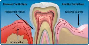 gordonii symptoms picture 7