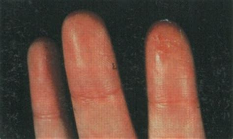 skin reactions to cement picture 6