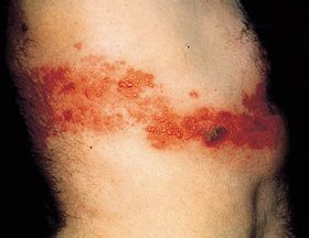 rx 2000 herpes picture 5