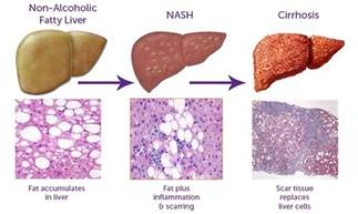 symptoms of elevated liver enzymes picture 3