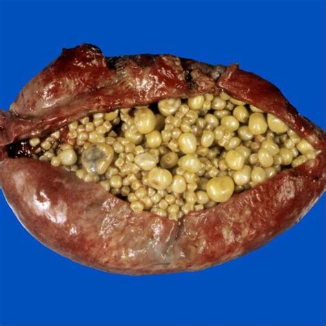 gall bladder sludge picture 7