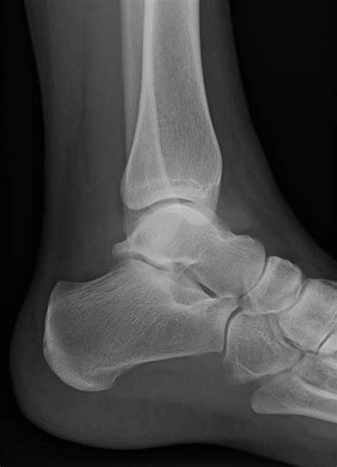 ankle joint effusion picture 9