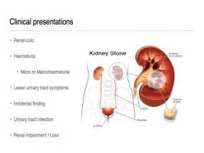 kidney and bladder disease picture 18