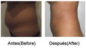slender ray lipo treatment reviews picture 6