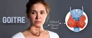 when is thyroid goiters an emergency picture 1