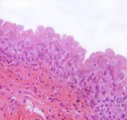 type of epithelium that lines the bladder picture 5