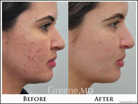 acne laser florida picture 1