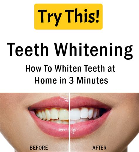 aol news on teeth whitening picture 18