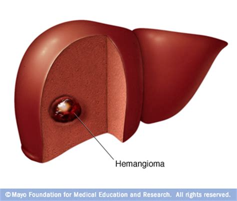 causes a liver hemangioma picture 7