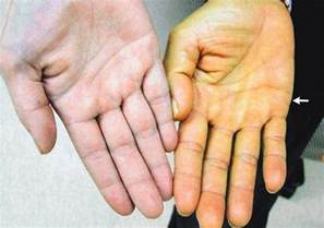 skin yellowing causes picture 2