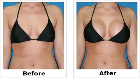 can i get breast augmentation with genital herpes picture 11