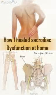 herbal treatment treatment for si joint dysfunction picture 2