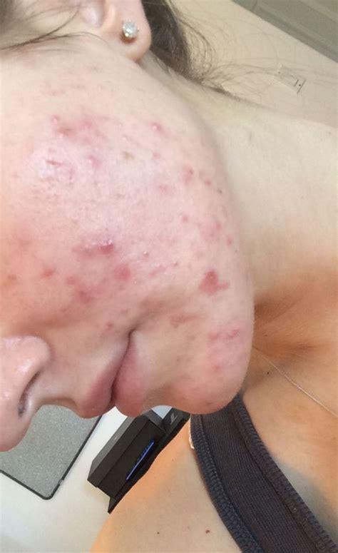 acne forum picture 2
