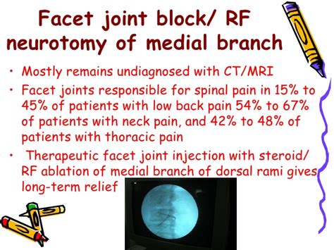 si joint rhizotomy picture 6