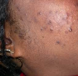 black skin bugs biting picture 2