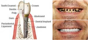 after radiation teeth implants picture 19
