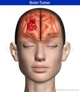 increase in libido in brain tumor picture 2