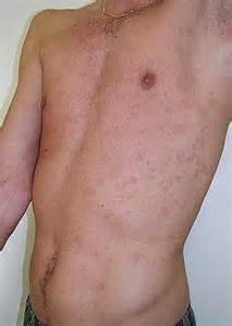 herpes genital men picture 10