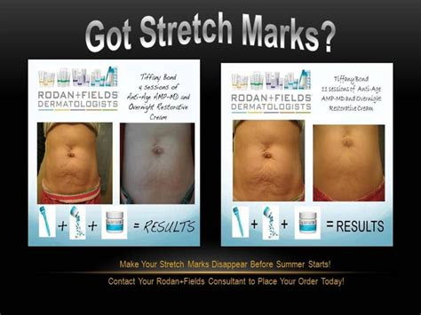 rodan and fields for cellulite and stretch marks picture 2