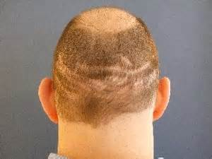 cheapest hair transplant picture 13