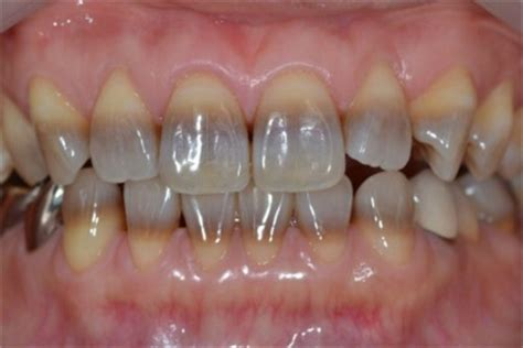 antibiotic side effects discoloring teeth picture 3