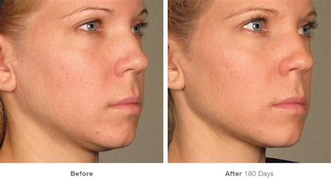 who does laser therapy for weight loss and picture 2