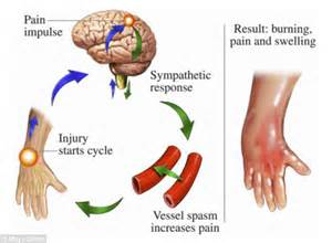 joint pain in the morning picture 9