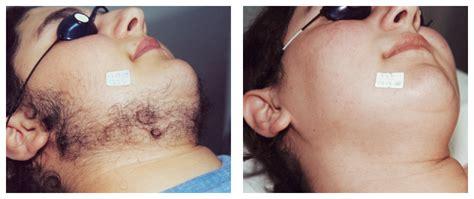 2014 best organic skin tightening picture 15