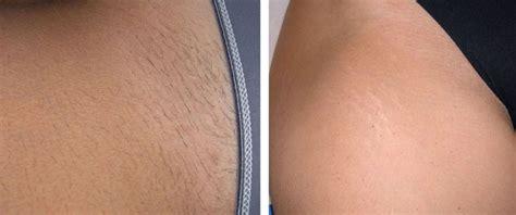 bikini hair removal picture 10