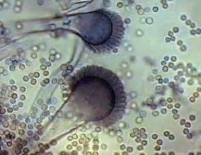 fungal infection-monilial spore picture 21