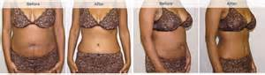 average weight loss after tummy tuck picture 7