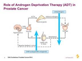 Hormonal treatment for prostate cancer picture 1