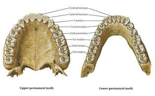 how braces on h are removed picture 7