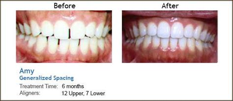 teeth pain picture 5