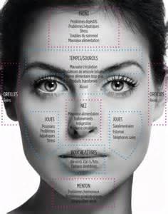acne picture 5