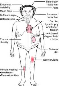 cortisol and weight gain with increase in breast picture 7