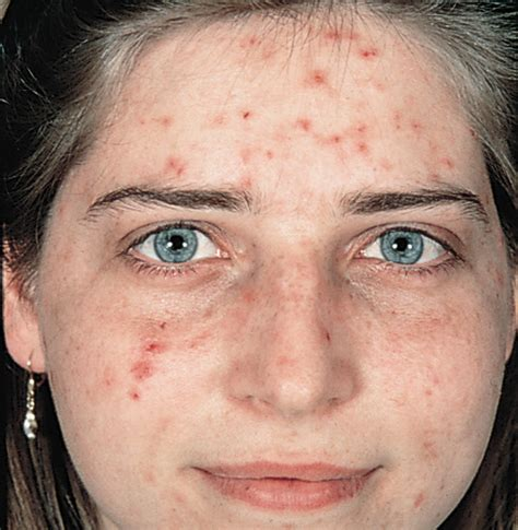 acne only on face picture 15