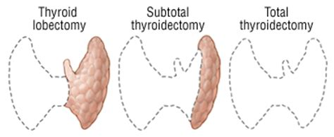after subtotal thyroidectomy picture 2