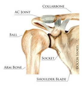 arthritis of the ac joint of the shoulder picture 14
