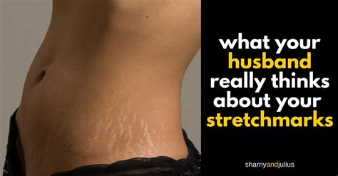 do stretch marks on a man bother women picture 8