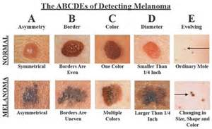 basal skin cancer symptoms picture 5