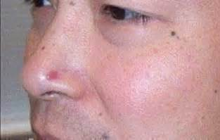 basal skin cancer symptoms picture 6