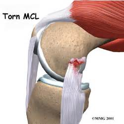 knee joint supplements picture 11