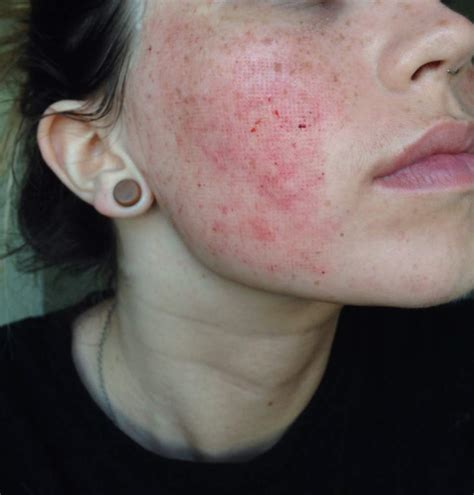laser resurfacing pictures acne scars picture 3