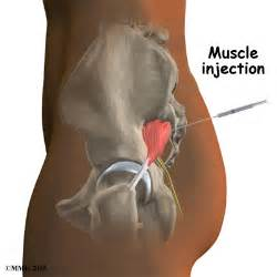injection site of shots into a muscle picture 17