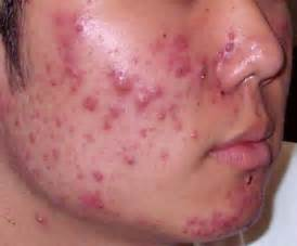 what is the cause for acne picture 18