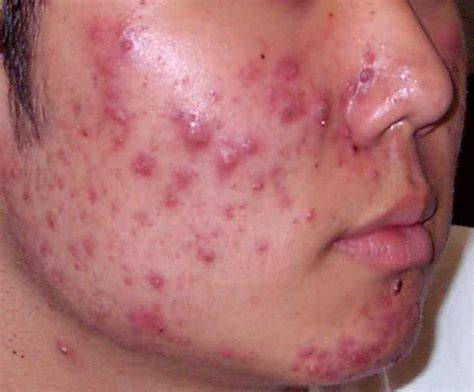 acne and candida picture 6