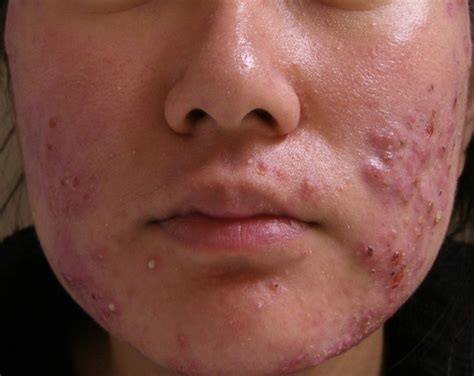 acne images picture 2