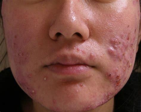 acne treatment picture 9