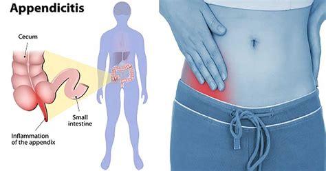 appendicitis picture 2